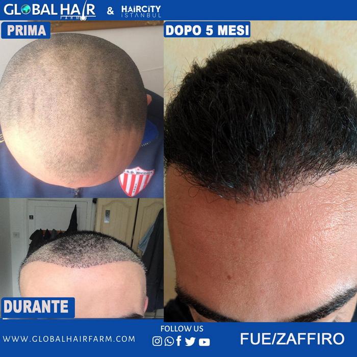 Global Hair: 351.5707057